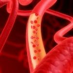 риск атеросклероза