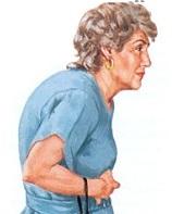 Диагноз остеопороз