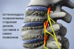 Остеохондроз причины и симптомы