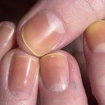 Пожелтевшие ногти