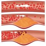 Снизить уровень холестерина в крови